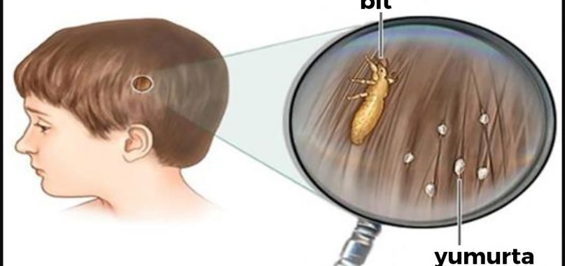 saç bakım kürü, bit nasıl temizlenir, bit nasıl oluşur, saçta sirke görüntüsü
